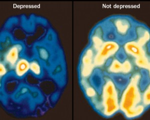 depressed-brain
